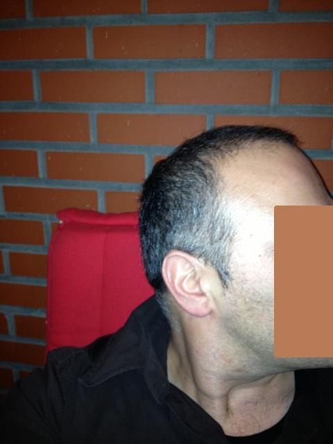 отзывы настойку перцовки для роста волос