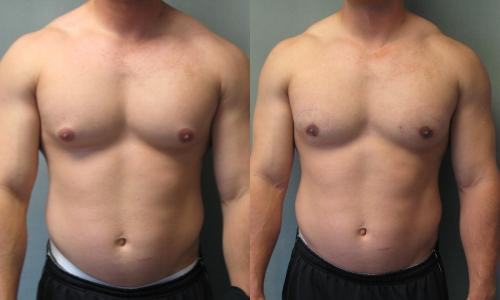 side effects of steroid shots for eczema