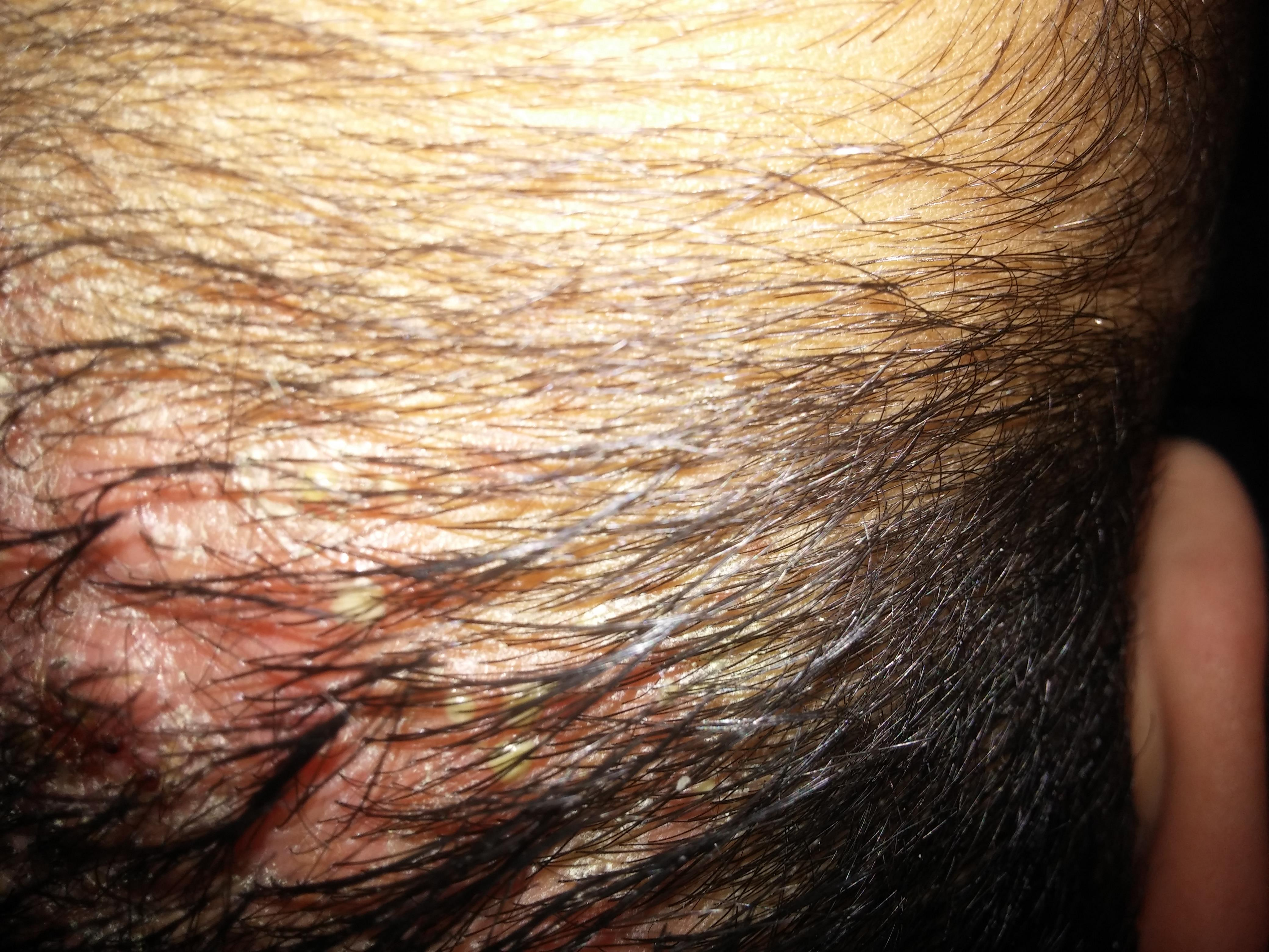 Lenf nodları neden kulakların arkasında iltihaplandı