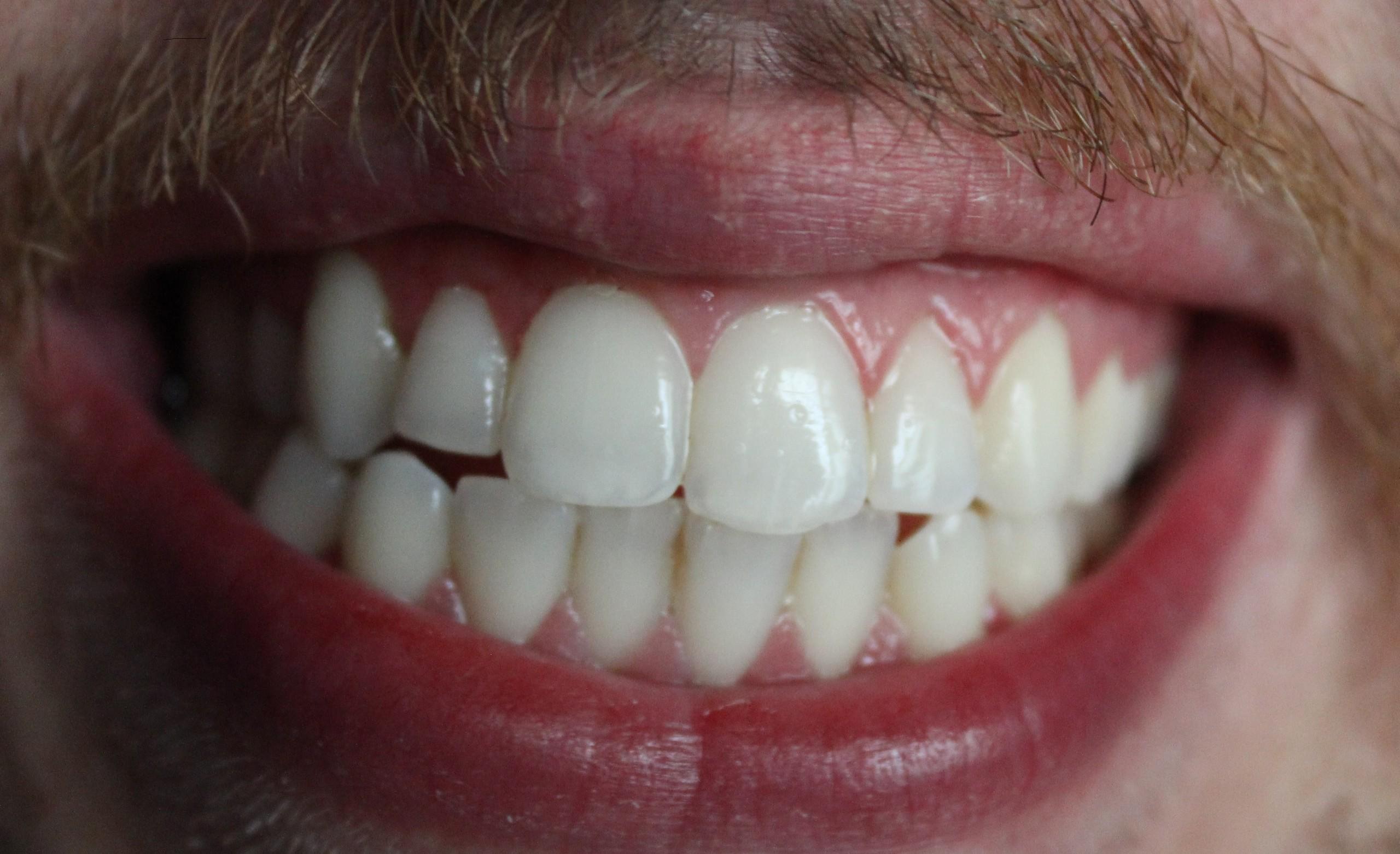 Beyaz dişler: Sahipleri nasıl