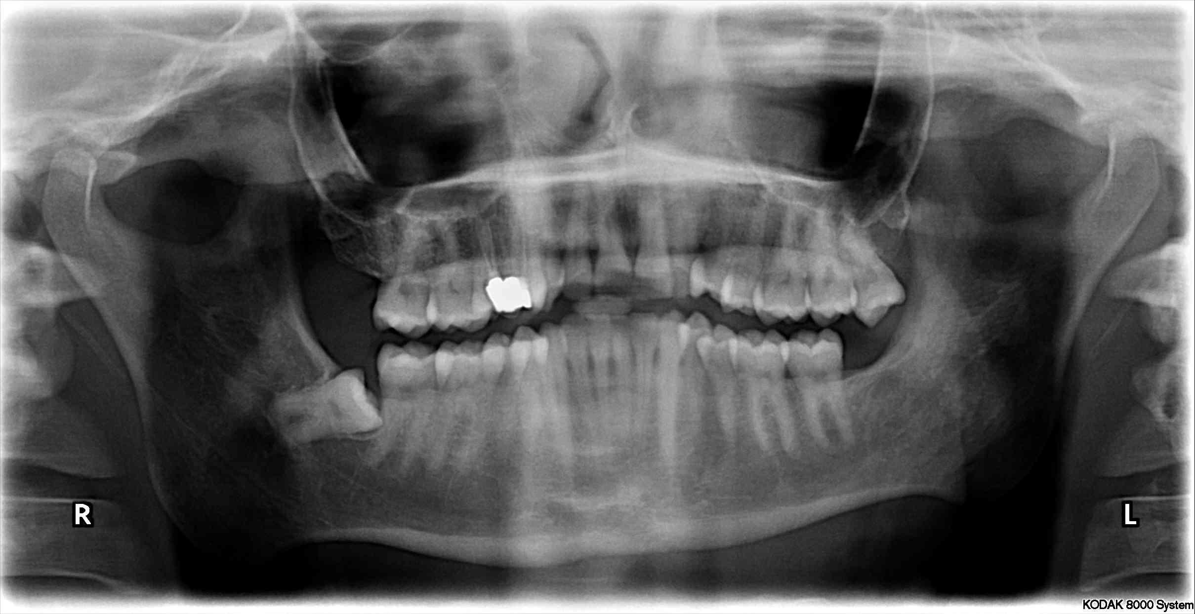20 lik Diş Çekimi Sonrası Ağrı ve Kanama